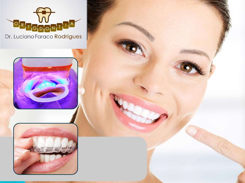 Clareamento Branqueamento Dental Invisalign Em Sao Jose Dos Campos